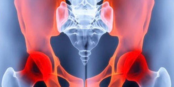 Curso Teórico-Práctico de Osteotomías Pélvicas